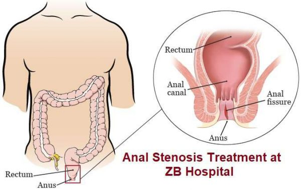 zaib medical center 03112852680, zhongba hospital lahore 03112852680, chinese hospital lahore 03112852680, anal fissure treatment in lahore anal fistula treatment in lahore abscess treatment in lahore ZB hospital lahore Zhongba Hospital lahore Anal stenosis treatment in lahore gastroenterologist in lahore bawaseer ka ilaj piles treatment chinese specialist in lahore gastrointestinal specialist, best treatment in lahore