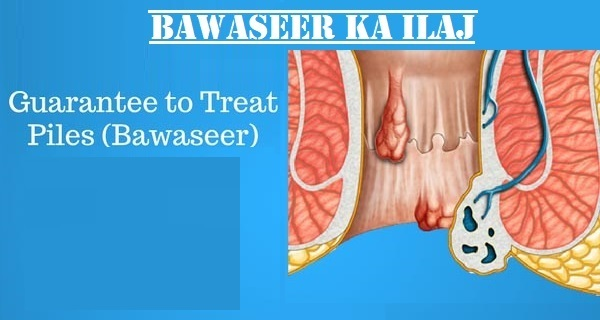 zaib medical center 03112852680, chinese hospital lahore 03112852680, zhongba hospital lahore 03112852680, bawaseer ka ilaj, bawaseer ka ilaj in lahore, best gastroenterologist in lahore, piles treatment in lahore, hemorrhoids treatment in lahore, stomach doctor in lahore