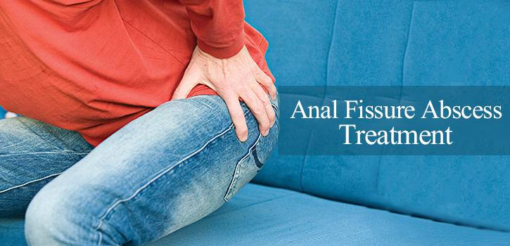 anal fissure abscess, anal fissure treatment in lahore, treatment by chinese specialist, chinese hospital in lahore, piles treatment in lahore, bawaseer ka ilaj, bawaseer ka ilaj in lahore, gastroenterologist in lahore, anal abscess, perianal abscess, anorectal abscess, ischiorectal abscess, fistula in ano causes, perirectal abscess surgery, colorectal fistula, hemorrhoids, perianal abscess treatment, perianal abscess antibiotics, perianal abscess treatment at home, Chinese treatment of perirectal abscess, perianal abscess symptoms, perianal abscess treatment without surgery, perianal abscess vs hemorrhoid, perianal abscess healing time, perianal abscess burst its own, anorectal abscess,