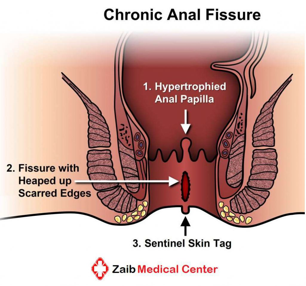 anal fissure treatment in lahore, anal fissure, best gastroenterologist in lahore, best anal fissure doctor